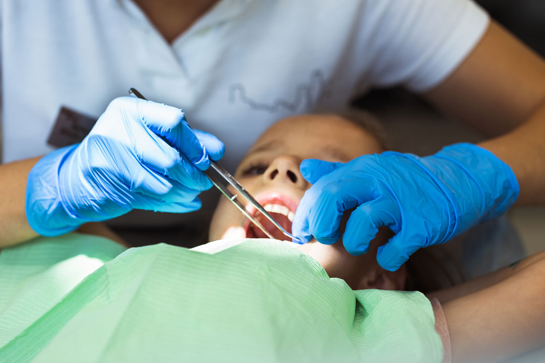 Benefits of Silver Diamine Fluoride (SDF) for Dental Caries Management in Children
